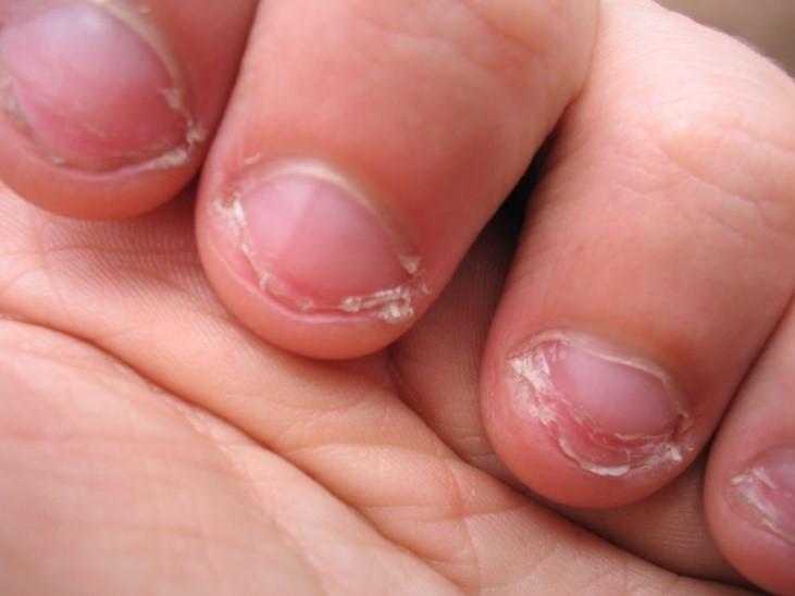 Страшные ногти: для чего, как и почему