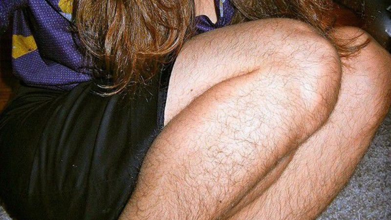 Причины повышенной волосатости у девушек и методы избавления