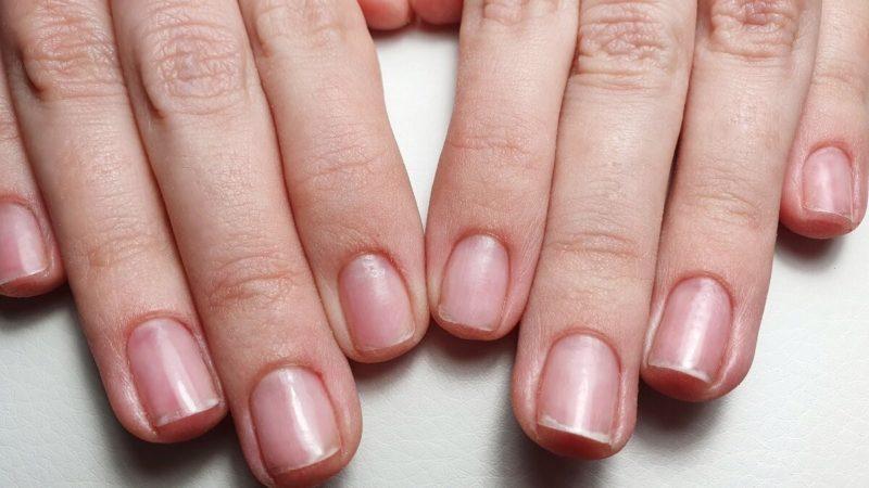 Что делать, если ногти слоятся