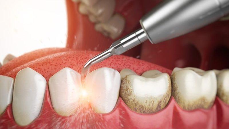 Почему появляются камни в зубах, как сделать зубы здоровыми и красивыми